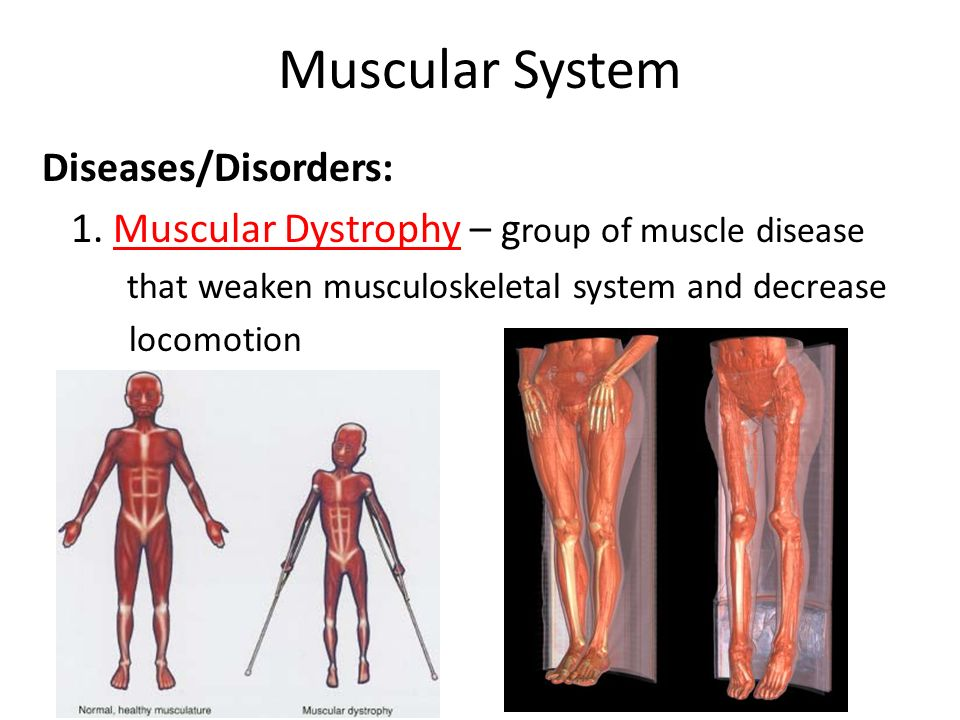 a description of a group of muscle diseases Human muscular system  each motor neuron controls several muscle cells in a group known as a  health problems in our section devoted to diseases and.