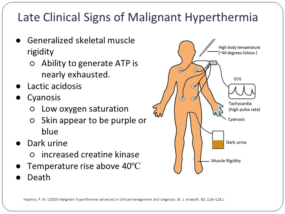 Late Clinical Signs of Malignant Hyperthermia