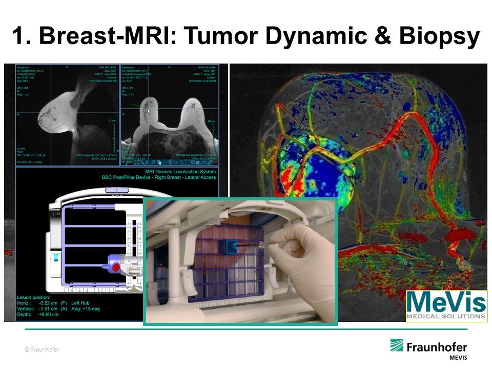 1. Breast-MRI: Tumor Dynamic & Biopsy