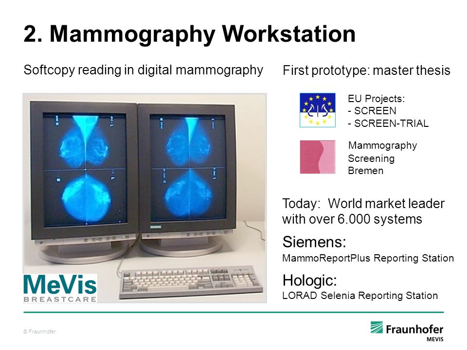 2. Mammography Workstation