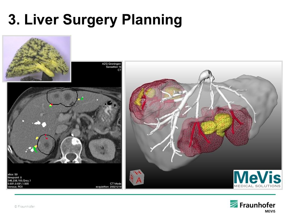 3. Liver Surgery Planning