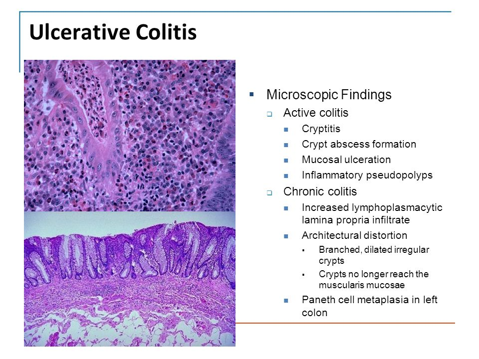 microscopic colitis steroid treatment