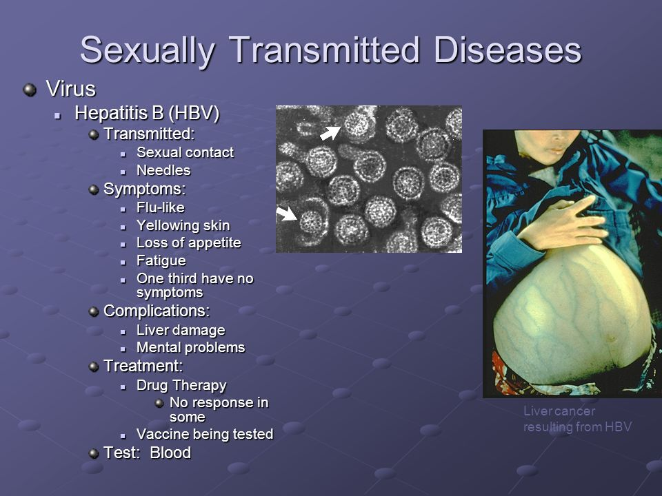 Sexually transmitted disease hepatitis b