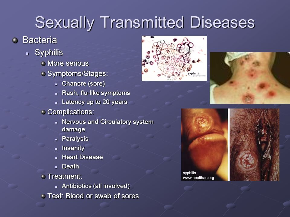 Sexually Transmitted Diseases - Information from CDC