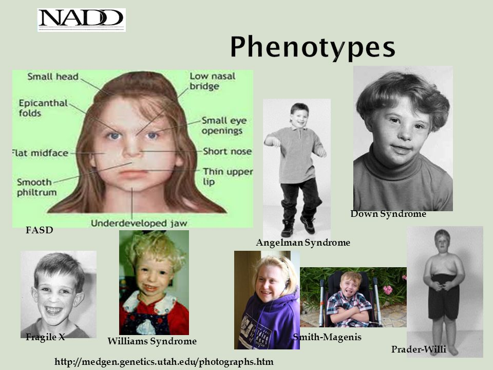 abnormal eating patterns adults down syndrome