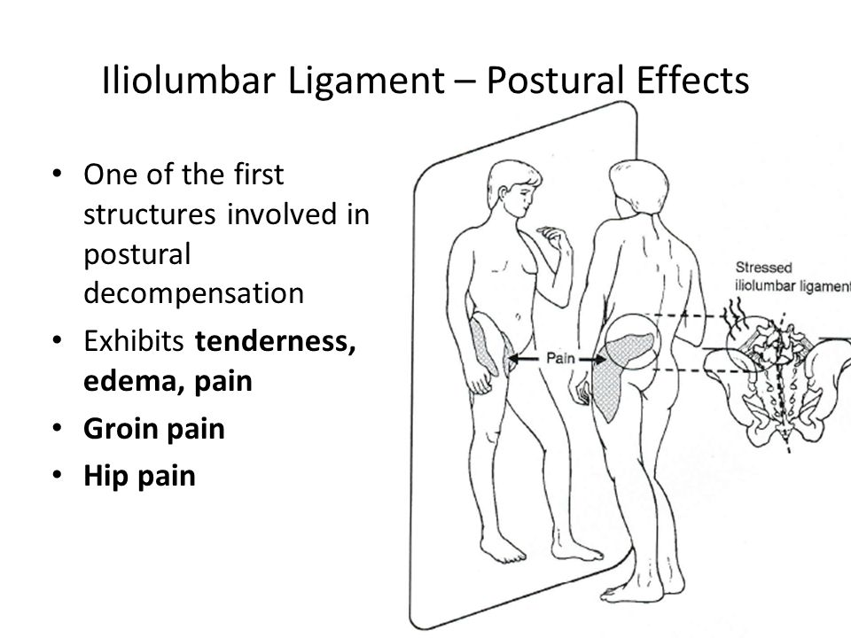 Iliolumbar ligament treatment