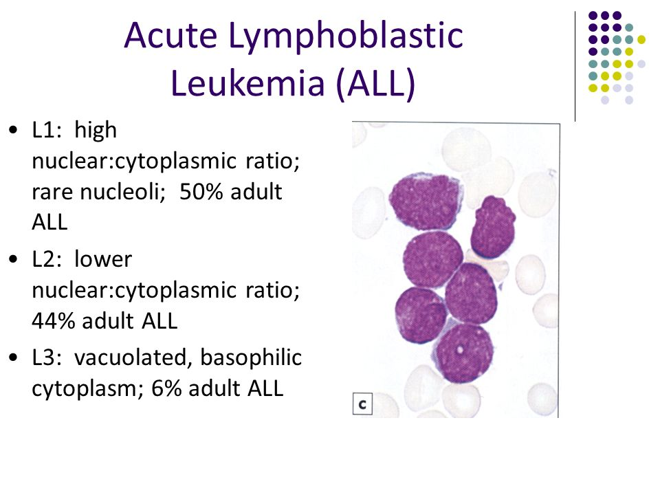 acute lymphoblastic leukemia adult