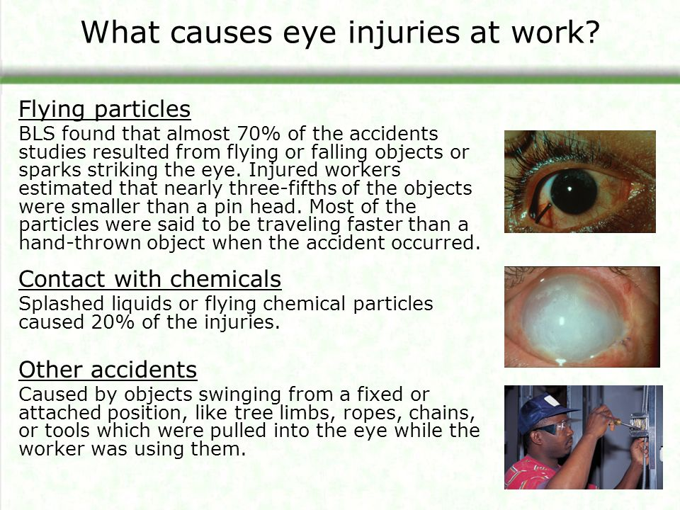 What causes eye injuries at work