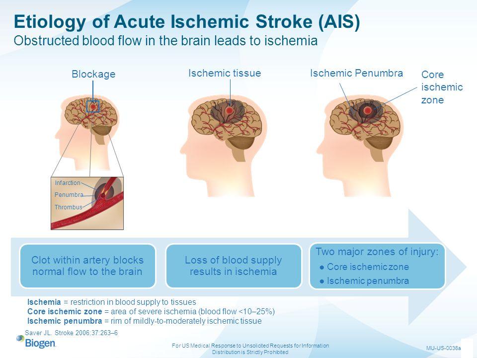Etiology of Acute Ischemic Stroke (AIS)