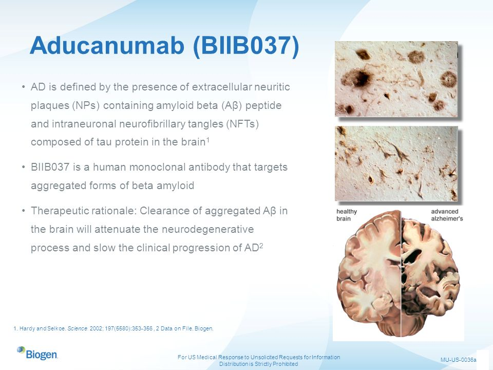 Aducanumab (BIIB037)