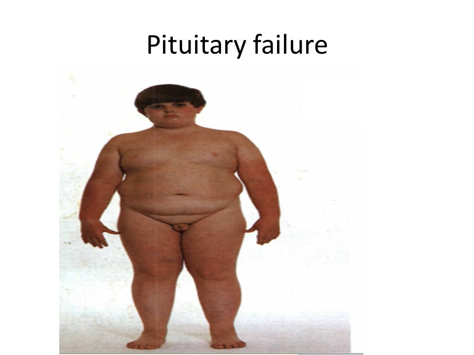 Pituitary failure