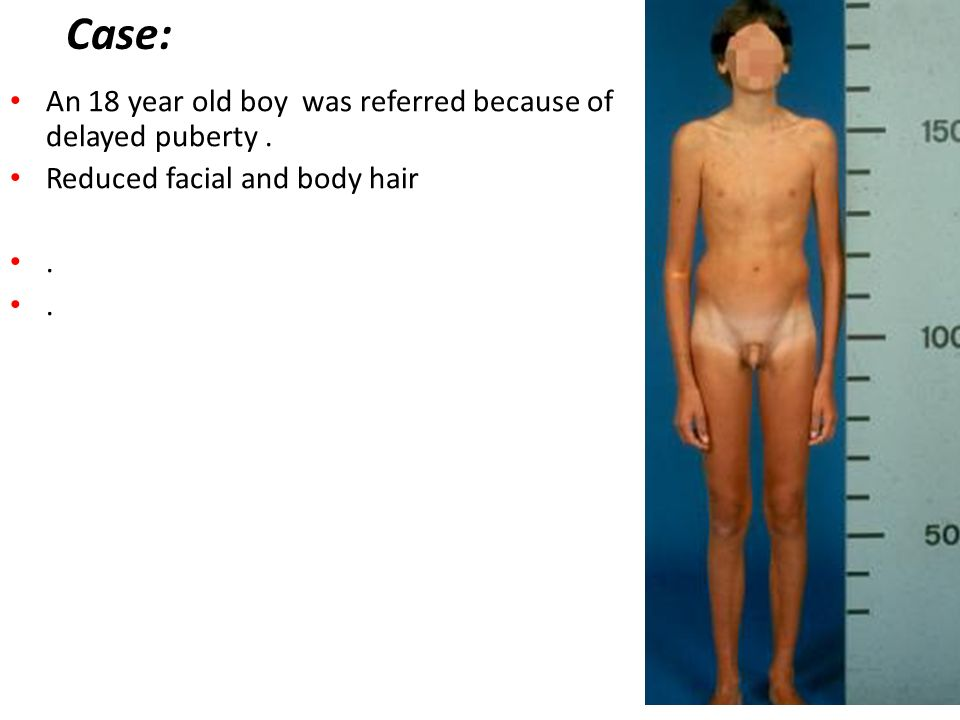 Case: An 18 year old boy was referred because of delayed puberty .