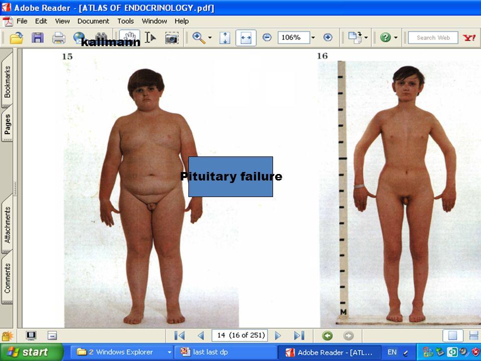 cdpuberty kallman kallmann Pituitary failure