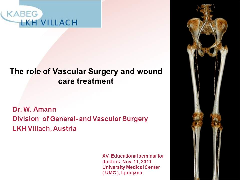 The role of Vascular Surgery and wound care treatment