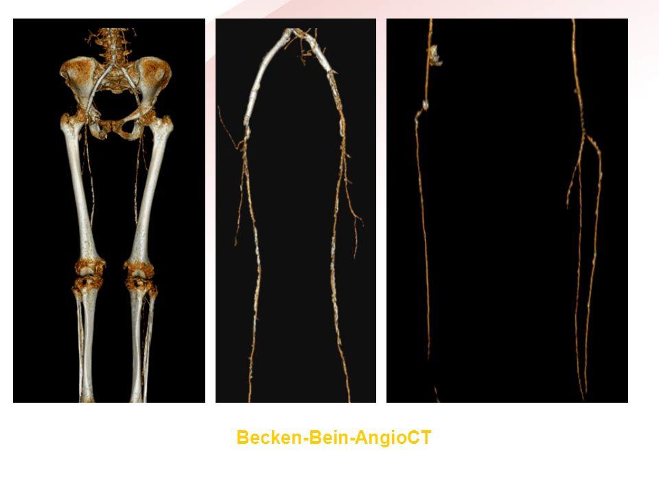 Becken-Bein-AngioCT