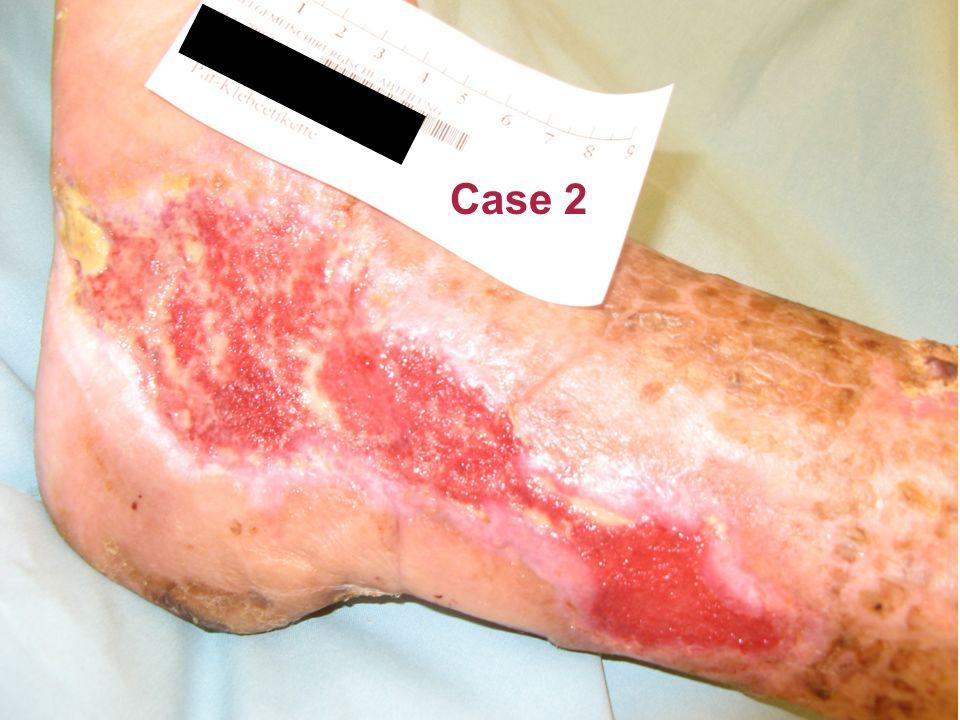 Case 2 21