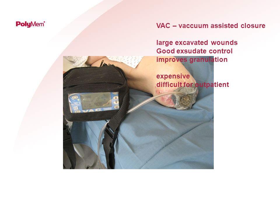 VAC – vaccuum assisted closure