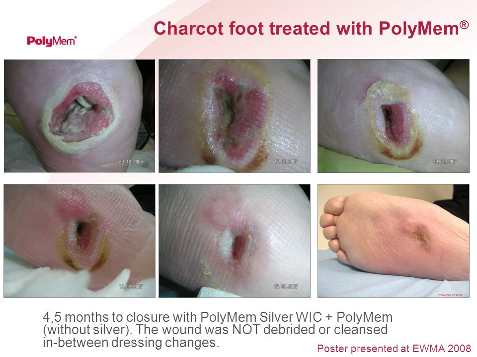 Charcot foot treated with PolyMem®