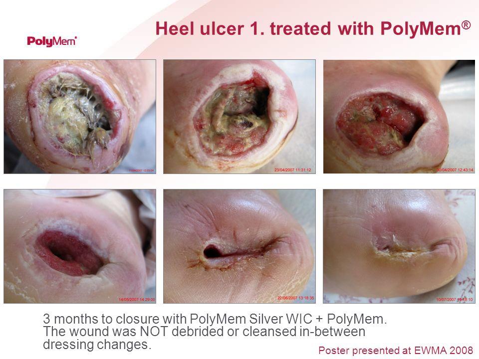 Heel ulcer 1. treated with PolyMem®