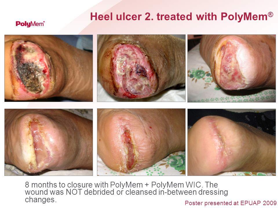 Heel ulcer 2. treated with PolyMem®