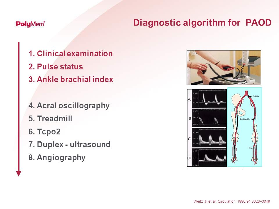 Diagnostic algorithm for PAOD