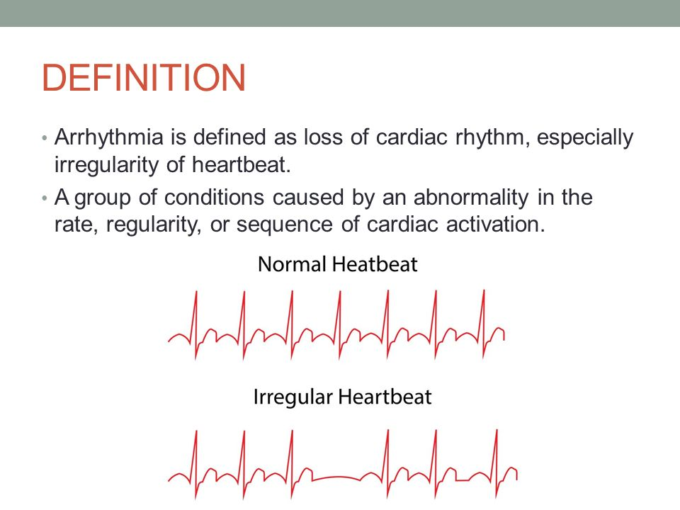 Causes and characteristics of the heart condition of arrhythmia