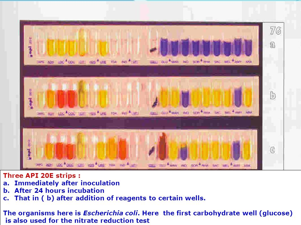 api 20e The api test is used to identify enterobacteriaceae organisms, so you first have to identify if the bacteria is a member so you have to do an oxidase test with any.