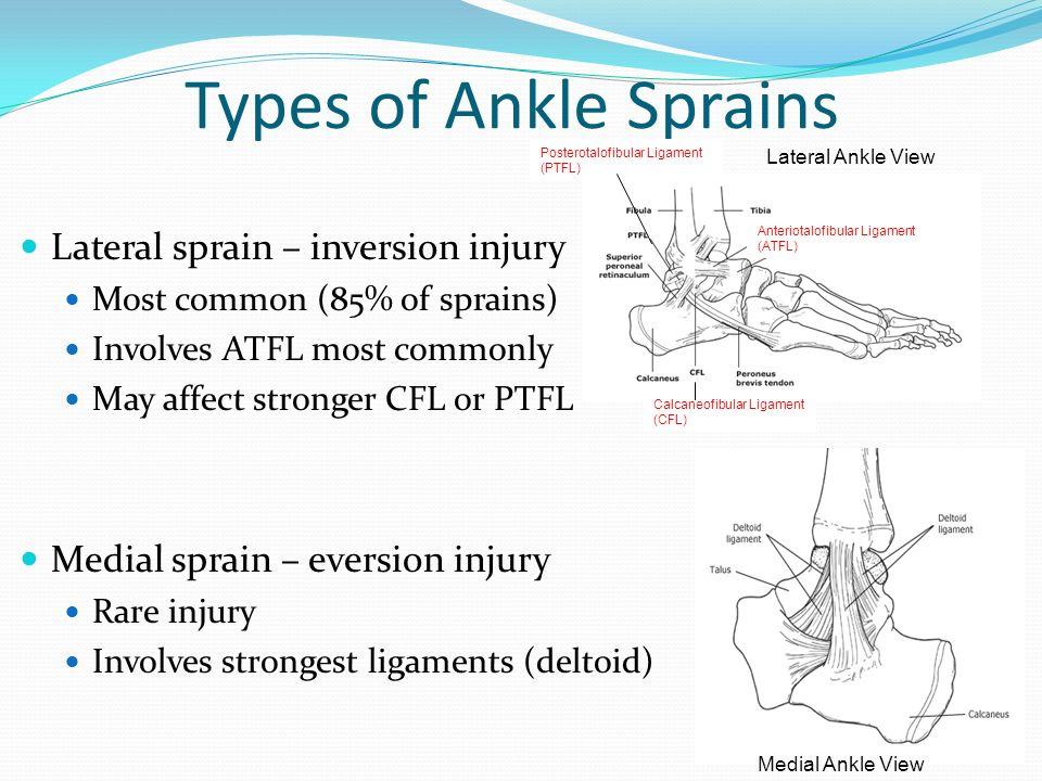 different types of ankle sprain Soft-tissue injuries fall into two basic categories: acute injuries and overuse injuries acute injuries are caused by a sudden trauma, such as a fall, twist, or blow to the body examples of an acute injury include sprains, strains, and contusions.