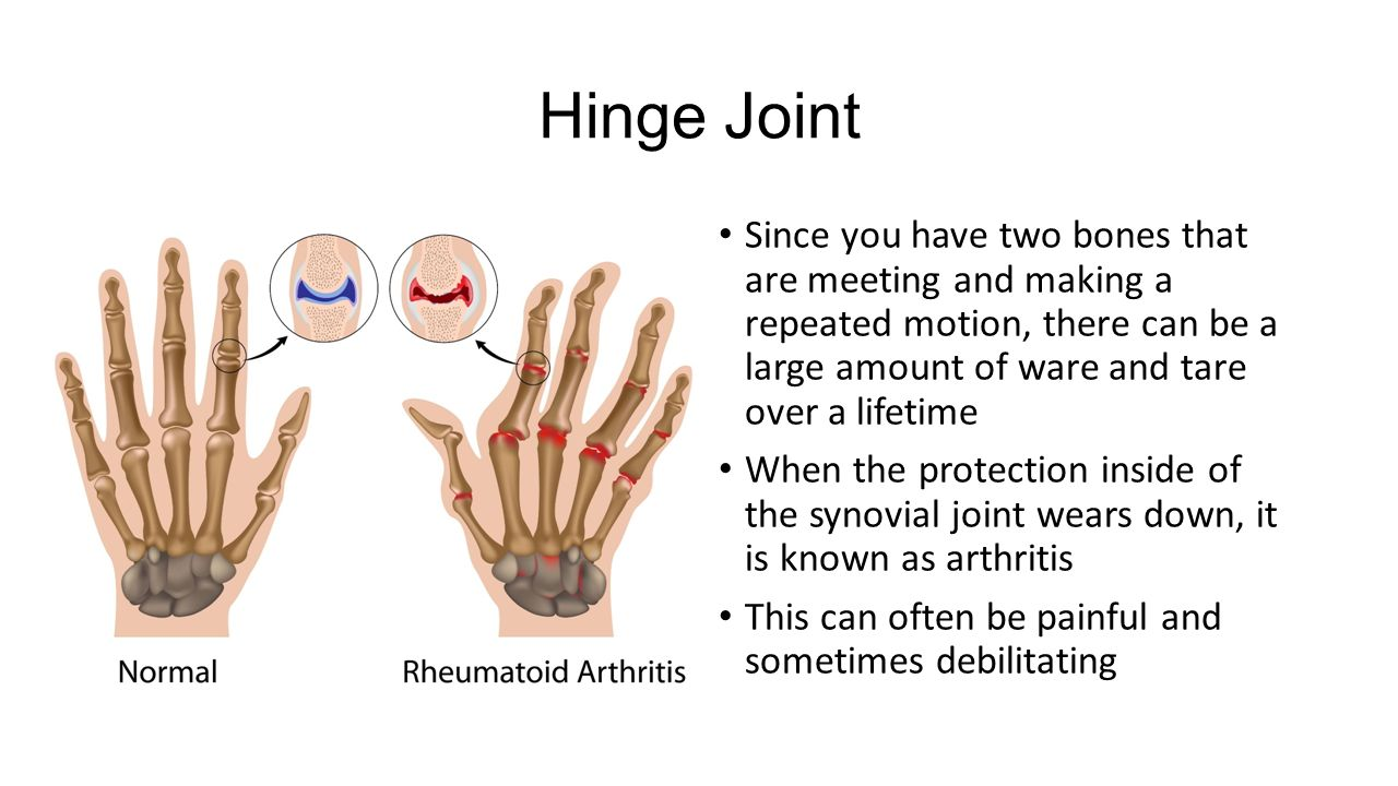 List Of Synonyms And Antonyms Of The Word Hinge Joint