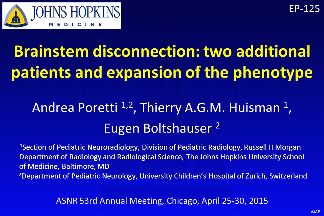 EP-125 Brainstem disconnection: two additional patients and expansion of  the phenotype Andrea Poretti 1,2, Thierry A G M  Huisman 1, Eugen  Boltshauser