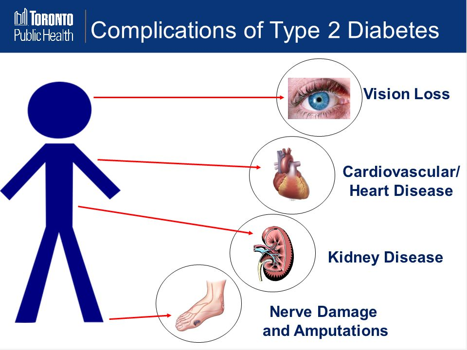 an overview of the type one diabetes and type two diabetes complications and health risks and resear Complications of diabetes mellitus are acute and chronic mortality and operative risks with these research from 2007 suggested that in type 1 diabetics.