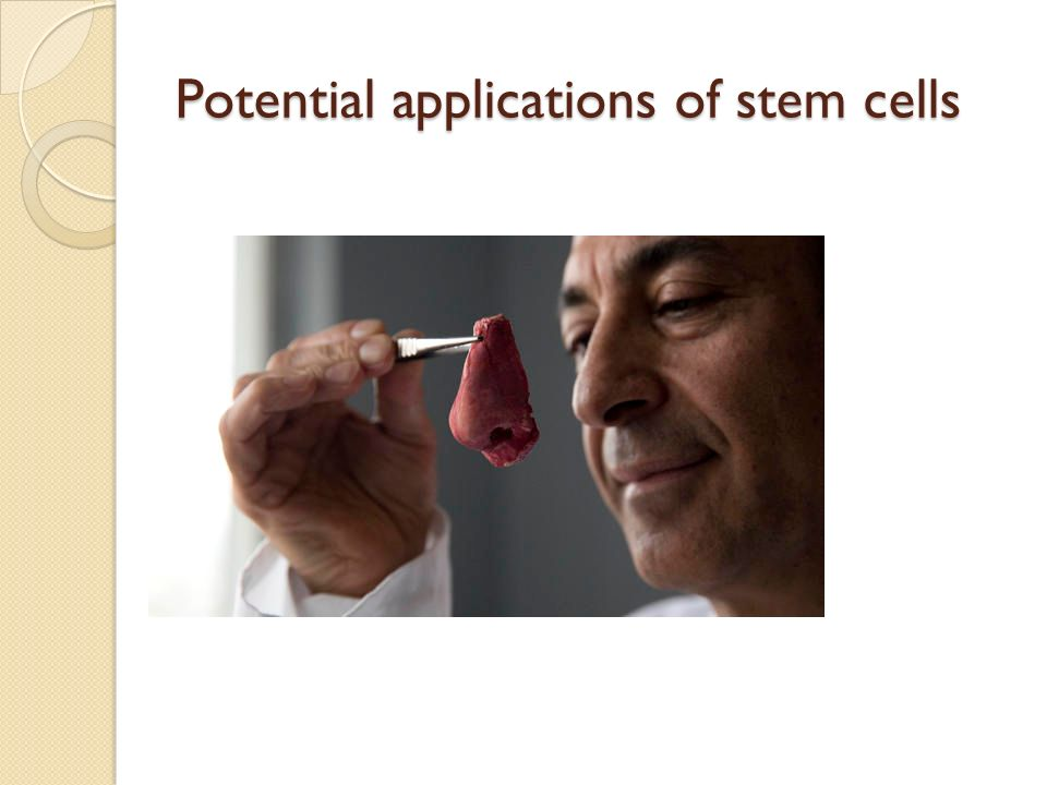 potential of adult stem cells Potential clinical applications of adult human mesenchymal stem cell (prochymal ®) therapy amit n patel, jorge genoveseuniversity of utah.
