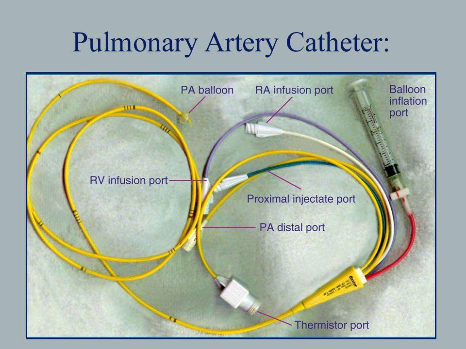 pa catheter - Vatoz.atozdevelopment.co