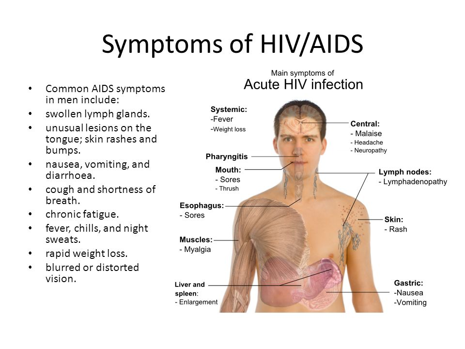 signs of aids in males