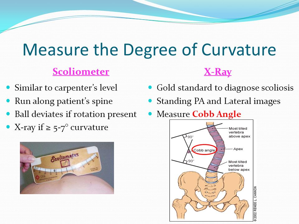 Scoliosis in the adolescent ppt video online download