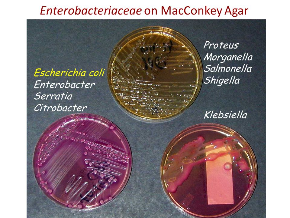 Enterobacter Aerogenes On Macconkey Agar Pathogenic Gram...