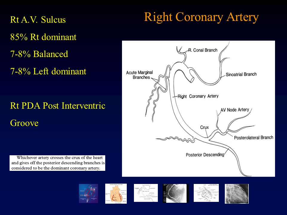 Dorable Right Coronary Artery Anatomy Sketch - Human Anatomy Images ...