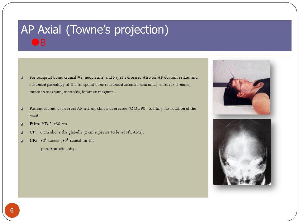 The Skull Dr Mohamed El Safwany Md Ppt Video Online Download