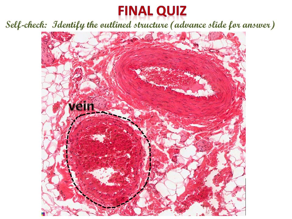 Final quiz Self-check: Identify the outlined structure (advance slide for answer) vein