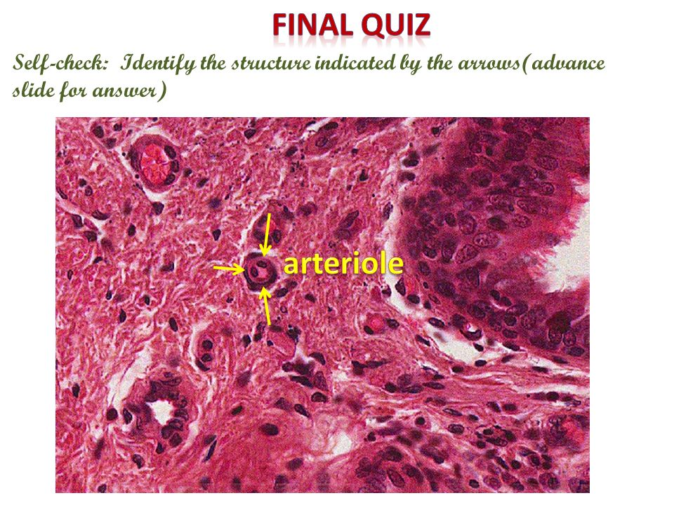 Final quiz Self-check: Identify the structure indicated by the arrows(advance slide for answer) arteriole.