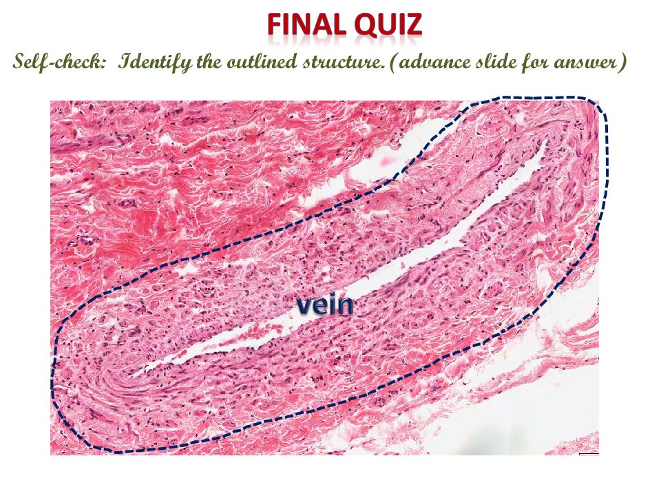 Final quiz Self-check: Identify the outlined structure. (advance slide for answer) vein