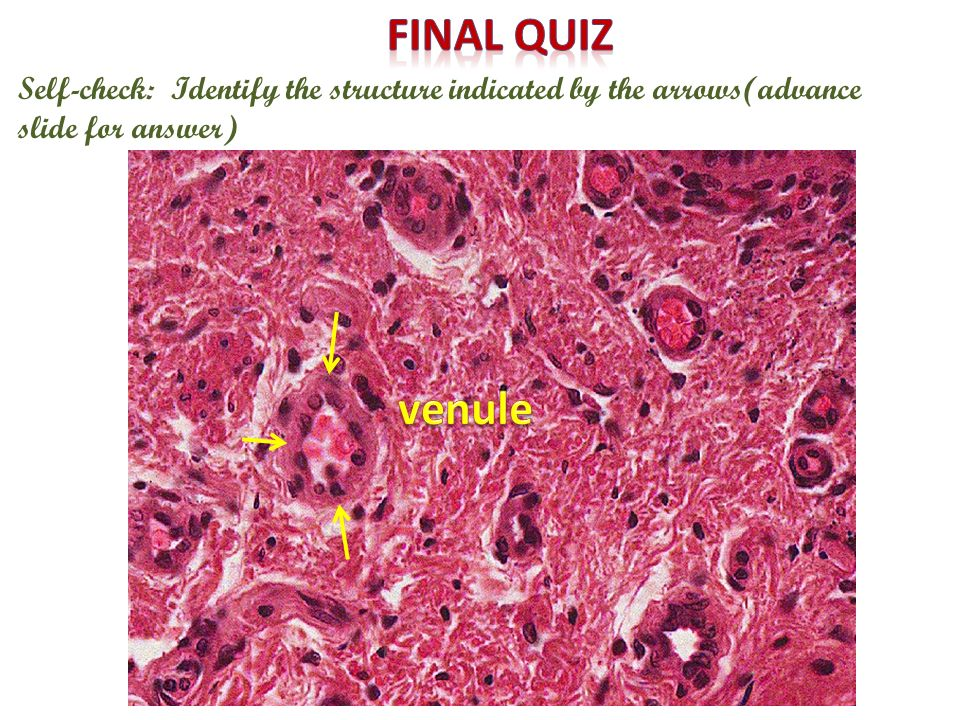 Final quiz Self-check: Identify the structure indicated by the arrows(advance slide for answer) venule.
