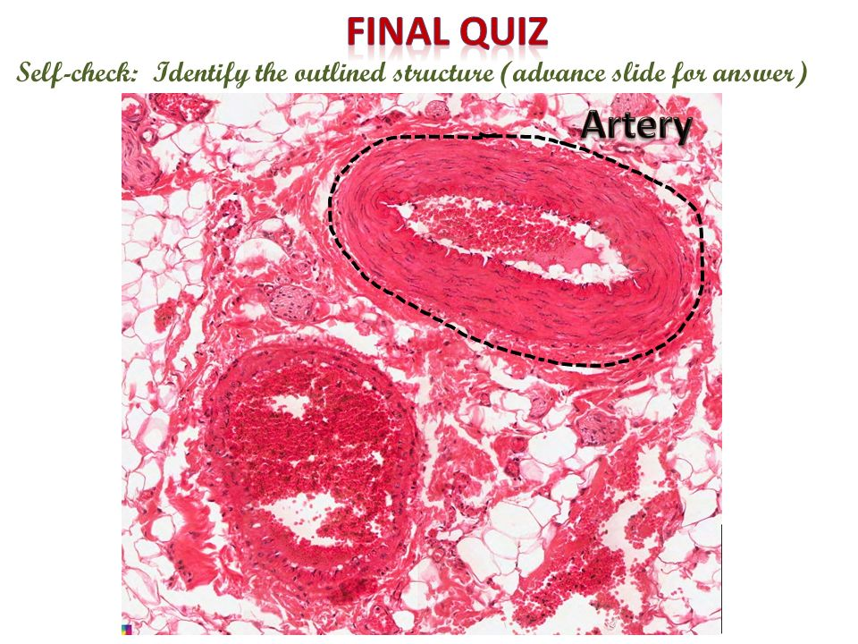 Final quiz Self-check: Identify the outlined structure (advance slide for answer) Artery
