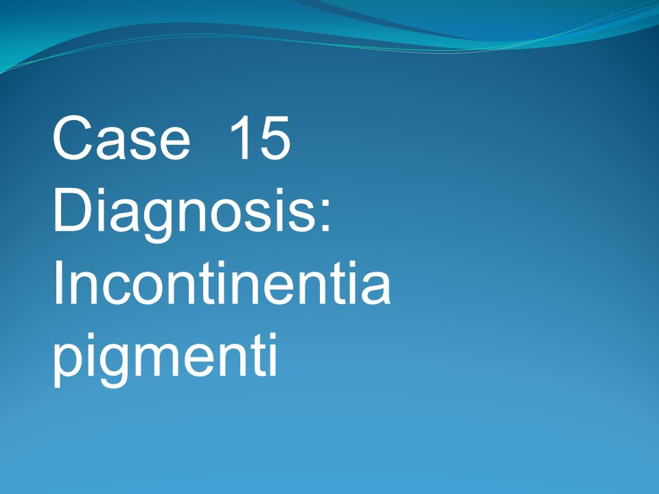 Case 15 Diagnosis: Incontinentia pigmenti