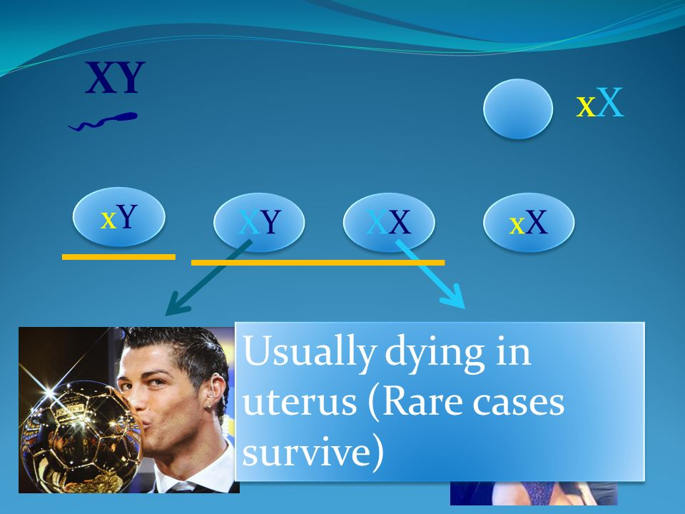 XY xX xY XY XX xX Usually dying in uterus (Rare cases survive)