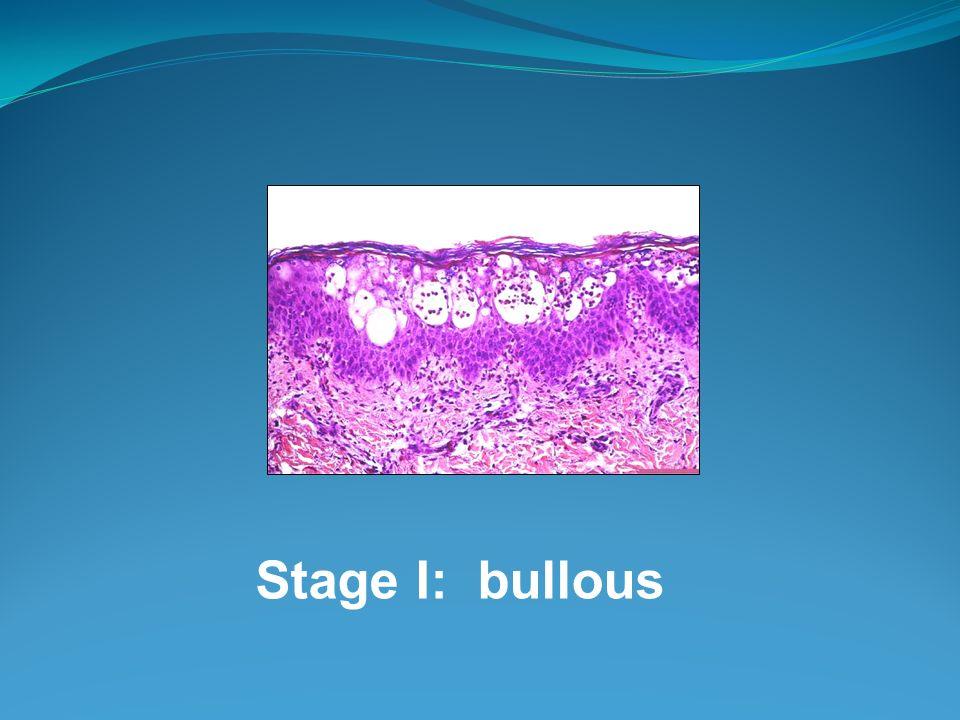 Stage I: bullous