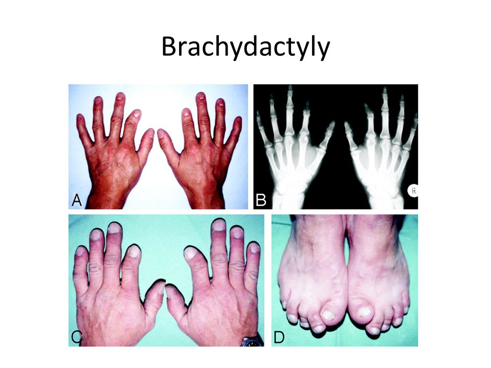 polydactyly 6 fingers. - ppt video online download, Skeleton