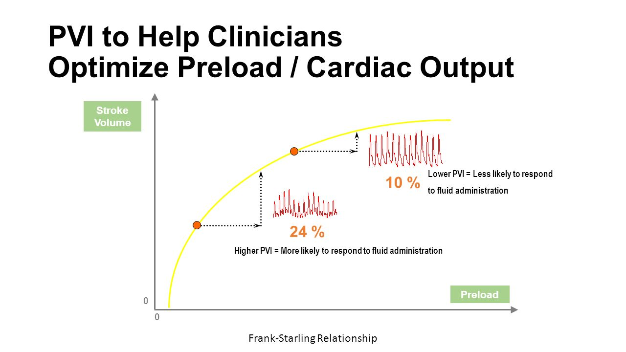 relationship between preload and cardiac output