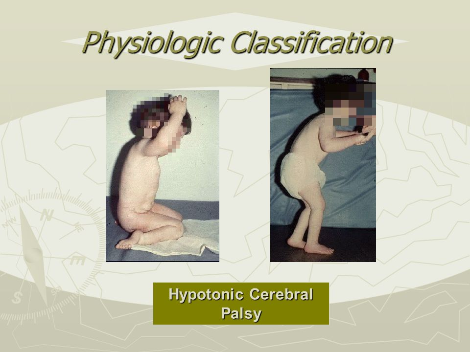 Physiologic Classification