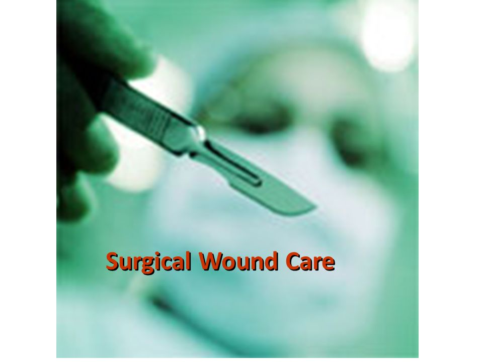 surgical wound care View chapter 14_ surgical wound carepdf from gerontology 1, 2, 3 at unitek college in fremont chapter 14: surgical wound care wound classifications - classified according to cause incision or.